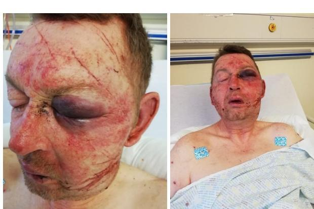 Two thugs who attacked man with axe after row over keys to be sentenced