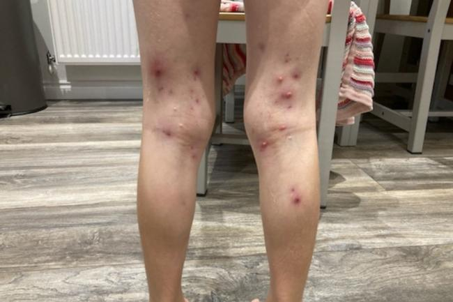 Dad warns against soft play centres after daughter covered by incurable skin rash